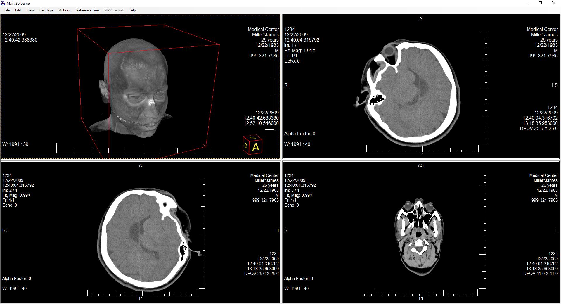 Medical 3D SDK Technology | LEADTOOLS