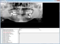 DICOM  screenshot