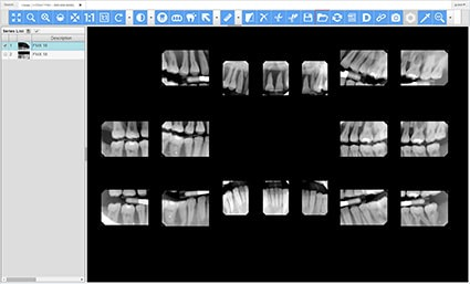 Dental Web Viewer Framework HTML5/JavaScript Interactive Demo