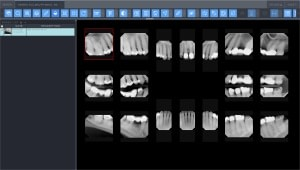 Dental Web Viewer screenshot