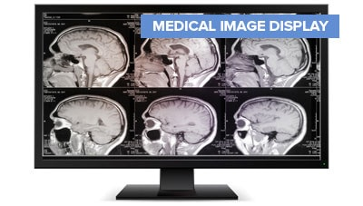Medical Image Display